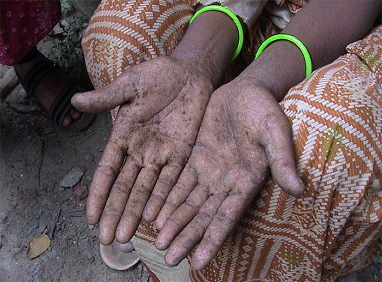 慢性ヒ素中毒症の皮膚症状